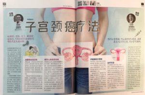 中西医谈:子宫颈癌疗法